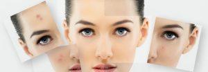 Проблемы с кожей лица, как их решить.